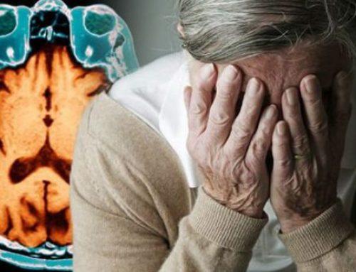 L'Alzheimer si combatte soprattutto con l'amore